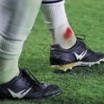 Jean-Luc Guer (Wizwedge) : «les chaussures de foot sont très en retard par rapport à l'intensité et à l'engagement du jeu actuel»